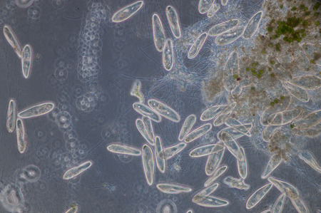 Paramecium is a genus of unicellular ciliated protozoa,  Paramecia are widespread in freshwater, brackish, and marine environments and are often very abundant in stagnant basins and ponds.