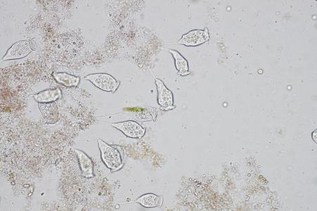 protista: Living Vorticella is a genus of protozoan under microscop view.