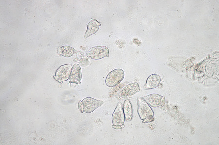cilia: Vorticella is a genus of protozoan under microscop view.
