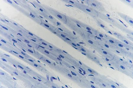 myocardium: Histology of cardiac muscle under microscope view Stock Photo
