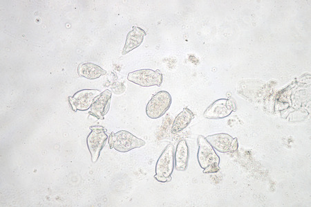 protozoan: Vorticella is a genus of protozoan under microscop view.