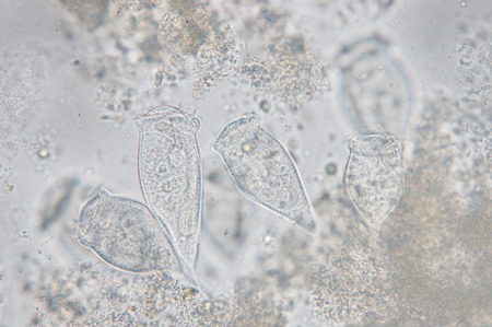 protozoan: Living Vorticella is a genus of protozoan under microscop view.