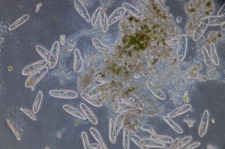 해파리는 단세포 섬모 원생 동물의 속이며, 파라 메 시아는 민물, 소금기가있는, 해양 환경에 널리 분포되어 있으며 정체 된 분지와 연못에서 매우 풍