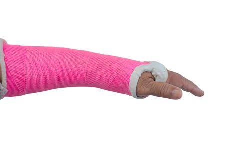 splint: arm splint, be in plaster cast isolate on white background Foto de archivo