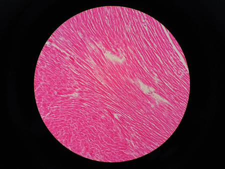 Histology of human cardiac muscle under microscope view