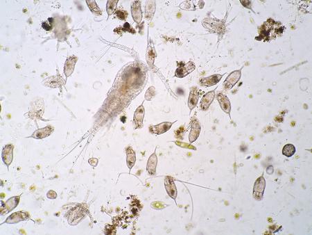 淡水水生プランクトンの顕微鏡ビュー