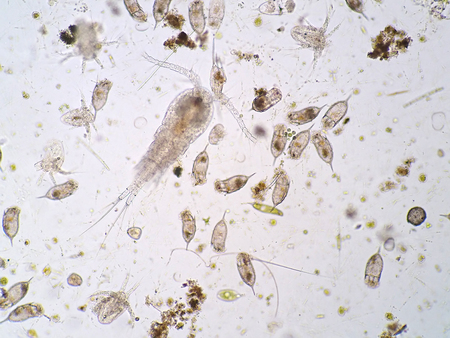 Freshwater aquatic plankton under microscope view