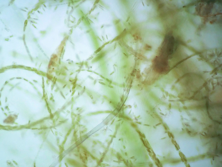 filamentous: Filamentous algae are single algae cells that form long visible chains, threads, or filaments. Stock Photo