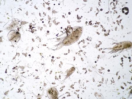 Freshwater aquatic zooplankton under microscope view