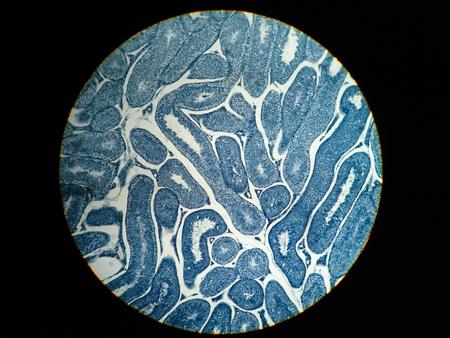 Sección transversal Testículos humanos bajo la vista del microscopio. Muestra espermatogonias, espermatocitos en meiosis, espermátidas y espermatozoides