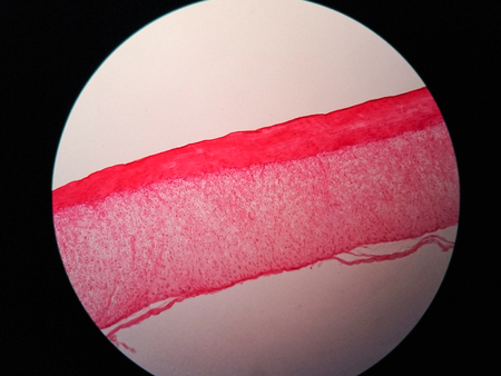 Cross section human tendon under microscope view