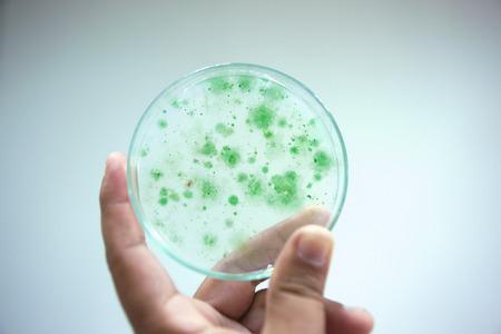 Colony of blue green algae in culture medium plate, Microbiology.
