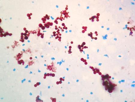 mycobacterium tuberculosis: Mycobacterium are to the bacteria that cause tuberculosis in fish or pet