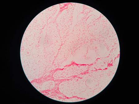 lipid a: Human fat body tissue under microscope view