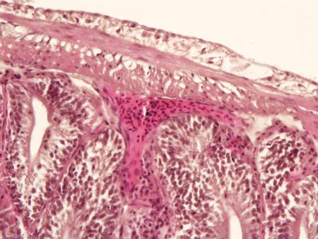 bowel: Intestine animal tissue under microscope view. histology of intestine. Stock Photo