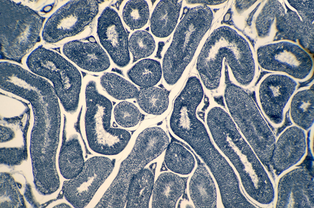 ejaculate: Cross section Human testis under microscope view. Shows spermatogonia, spermatocytes in meiosis, spermatids, and spermatozoa