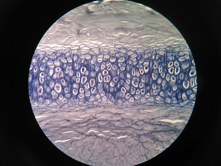 Cross section human cartilage bone under microscope view