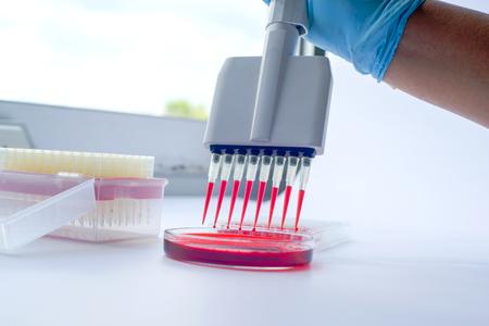 Scientist working with multichannel pipette.Blood test labboratory