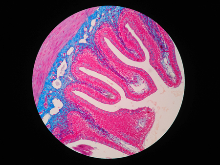 villus: Histology of human intestine tissue under microscope view Stock Photo