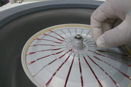 contagious: blood test machine in laboratory Stock Photo
