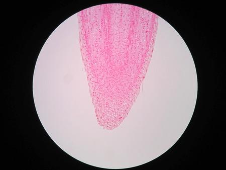 Sections transversales de la racine de la plante sous la vue du microscope Banque d'images - 81293613