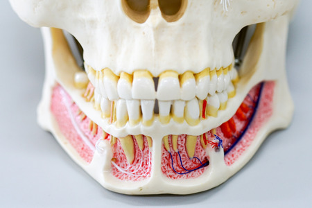 Closeup dental tooth model cast showing decay casing pain, enamel and roots in profile interior of  human skull model Stock Photo