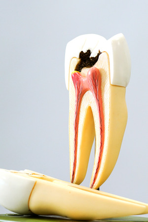 Decayed tooth model with background