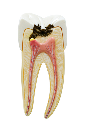 orthodontist: Decayed tooth model isolate on white background