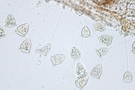 Vorticella is a genus of protozoan under the microscope view.