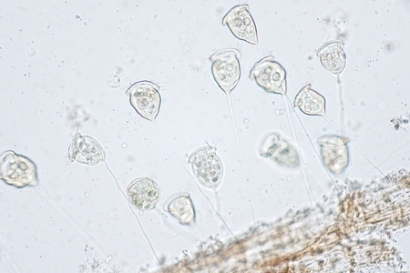 ツリガネムシは、ビュー顕微鏡下で原生動物の属であります。 写真素材