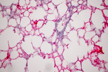 Human lung tissue under microscope view. Lungs are the primary organs of the respiratory system in humans and many other animals