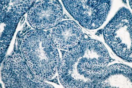 Cross section Human testis under microscope view. Shows spermatogonia, spermatocytes in meiosis, spermatids, and spermatozoa