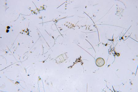 Marine aquatic plankton under the microscope view