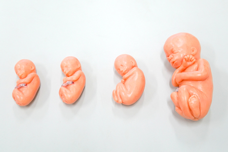 A fetus is a stage in the prenatal development of viviparous organisms. In human development