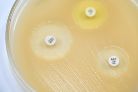 Antibiotic sensitivity of bacteria by means of diffusion test is a test. Microbiology
