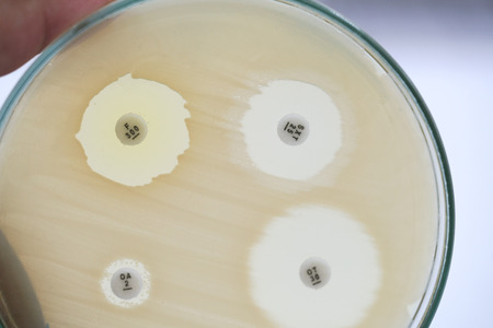 Antibiotic sensitivity of bacteria by means of diffusion test is a test. Microbiology Stock fotó