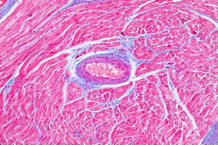 Histología del músculo cardíaco humano bajo vista microscópica para educación. Tejido humano. Foto de archivo