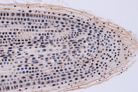 Root tip of Onion and Mitosis cell in the Root tip for education