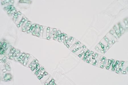 Spirogyra is genus of filamentous charophyte green algae under microscope view