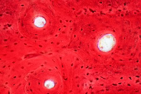 Histology of human compact bone tissue under microscope view for education, muscle bone connection and connective tissue
