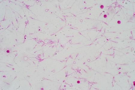 Human sperm morphology under microscope. Micrograph showing spermatozoons