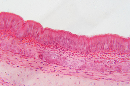 Pseudostratified epithelium is a type of epithelium that, though comprising only a single layer of cells.
