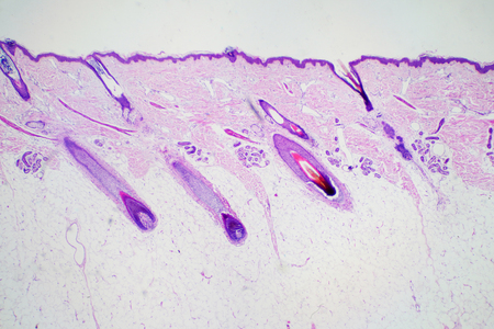 Cross section human skin head under microscope view for education histology. Histological for human physiology.