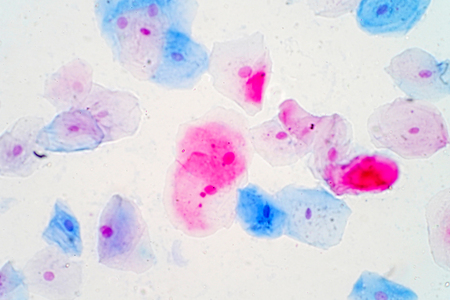 Squamous epithelial cells under microscope view for education histology. Histological for human physiology. Stock Photo