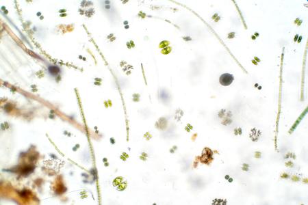 Freshwater aquatic plankton under microscope view in laboratory