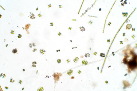 Freshwater aquatic plankton under microscope view in laboratory