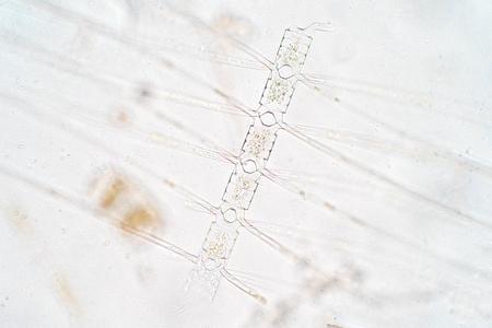 Chaetoceros is the largest genus of marine planktonic diatoms, phytoplankton Stock Photo