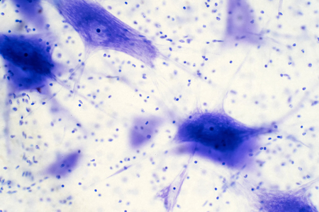 Neurons cells from the brain under the microscope view for education. Stock Photo