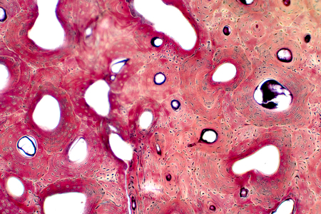 Histology of human compact bone tissue under microscope view for education, muscle bone connection and connective tissue Stock Photo