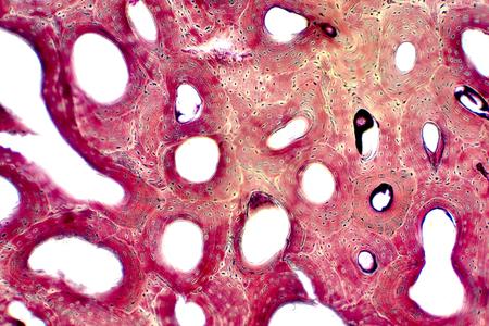 Histología del tejido óseo compacto humano bajo la vista microscópica para educación, conexión entre músculo y hueso y tejido conectivo